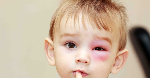 Отек квинке — первая помощь в домашних условиях, симптомы и неотложная помощь при аллергической реакции у ребенка