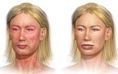 Болевой шок — симптомы и первая помощь, признаки травматического шока у детей и неотложные противошоковые мероприятия