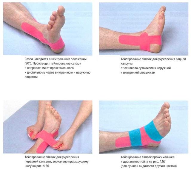 Растяжение связок кисти руки: причины возникновения и симптомы, диагностика и лечение в домашних в условиях