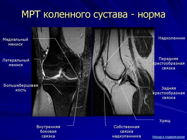 Лигаментоз крестообразных связок коленного сустава — лечение и причины, последствия и осложнения заболевания