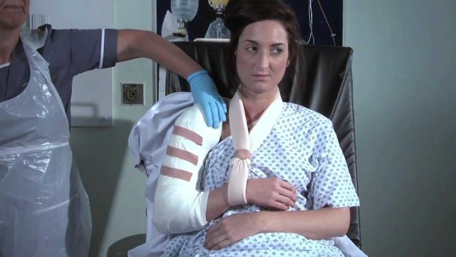 Перелом большого бугорка плечевой кости со смещением и без: лечение и реабилитация