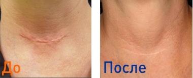 Удаление рубцов на лице лазером и шлифовка шрамов (фото до и после), сколько стоит убрать шрам