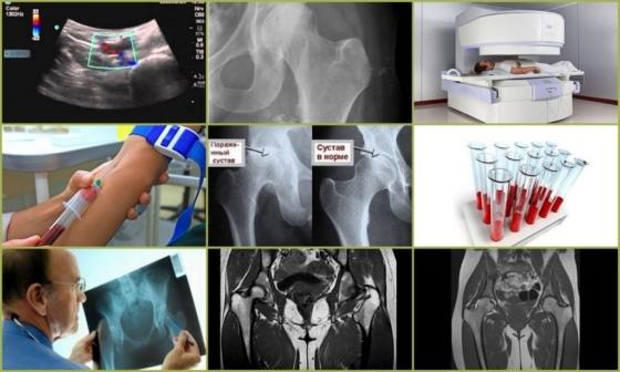 Растяжение связок тазобедренного сустава — лечение и симптомы травм, воспаление сухожилий в области малого таза