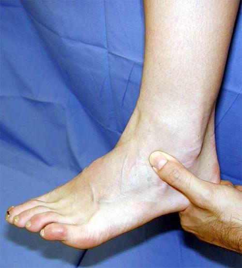 При растяжении связок стопы — что делать и как оказать первую помощь если подвернул голеностопный сустав (голеностоп)