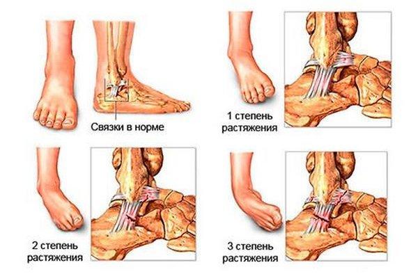 Лечение растяжение связок голеностопа в домашних условиях и первая помощь, как лечить травму стопы дома