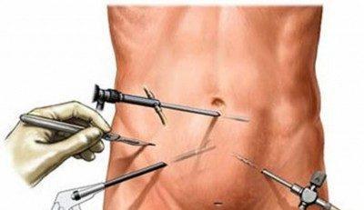 Шрамы после лапароскопии (фото), чем мазать рубец после операции по удалению кисты яичника и аппендицита и остаются ли шрамы