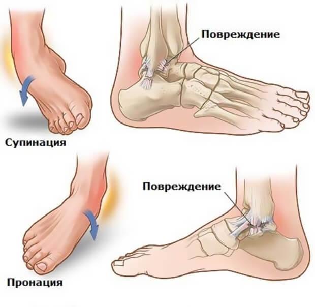 Вывих ноги в районе щиколотки (лодыжки): симптомы и лечение, что делать с пострадавшим