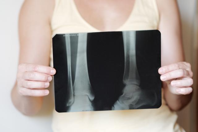 Растяжение связок голеностопа — лечение повреждения голеностопного сустава и сколько заживает, чем лечить травму стопы у ребенка