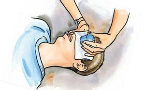 Ожог щелочью — первая помощь и лечение в домашних условиях, что делать и чем лечить ожог глаз