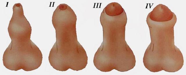Рубцы на члене у мужчин и мальчиков — лечение и причины, шрамы на крайней плоти и головке полового члена