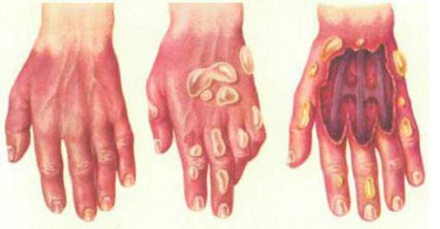 Ожог 2 степени (фото) — лечение в домашних условиях и характеристика ожогов 1, 3 и 4 степени, их признаки и первая помощь