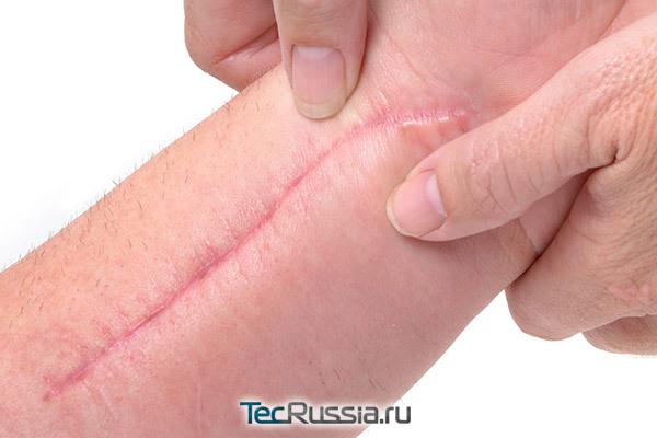 Почему чешется шрам после операции, удаления родинки и от контрактубекса, зудят старые шрамы и как снять зуд