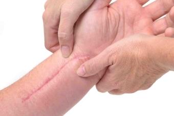 Как убрать шрамы от порезов и избавиться от рубцов с помощью пилинга, мазей и средств народной медицины