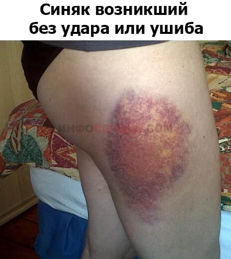 Синяки на теле без причины — у женщин и мужчин, почему быстро появляются кровоподтеки (гематомы ) на коже без ушибов