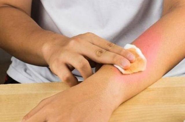 После ожога слезла кожа — чем мазать и что делать, средства (крем и мазь) для восстановления кожи, чем обрабатывать рану