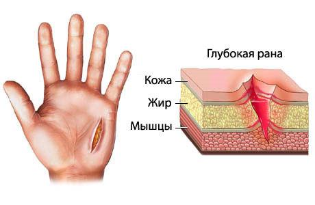 Глубокий порез пальца ножом — что делать и как лечить в домашних условиях, чем обработать если глубоко (сильно) порезал палец
